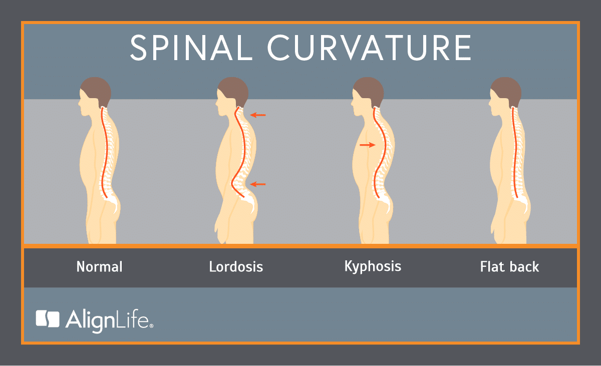 Spinal curves - normal, lordosis, kyphosis, flat back