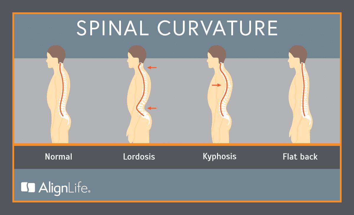 Spinal curves - normal, lordosis, kyphosis, flat back