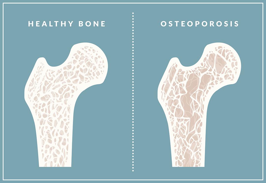 osteoporosis vs huesos sanos